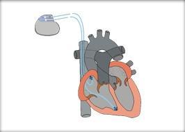 Funktionsweise eines Herzschrittmachers